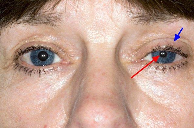 Синдром Гарднера: что это, симптомы, фото, лечение