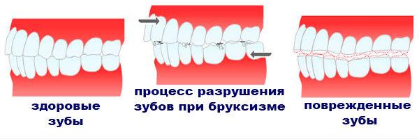 Глисты и скрежет зубами, глисты и дерматит, пути заражения глистами