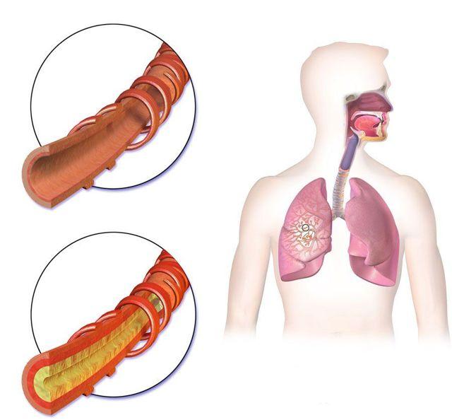 Посев мокроты на туберкулез: сколько делается, расшифровка, как собирать и сдавать