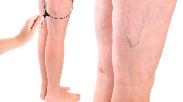 Судороги в ногах: причины, лечение в домашних условиях, причины судорог в ногах при беременности