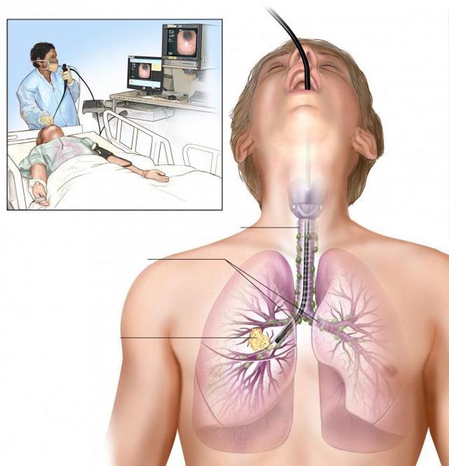 Бронхоскопия легких: что это такое, как делают, подготовка к бронхоскопии