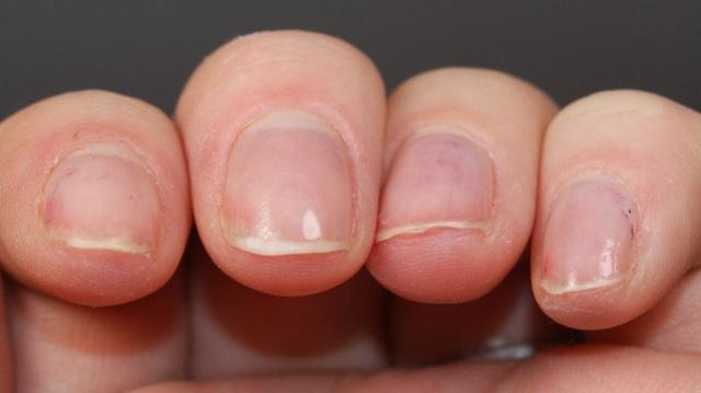 Почему слоятся ногти на руках и ногах: причины ломкости ногтей