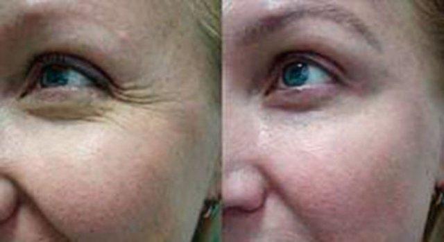 Диспорт: фото до и после, осложнения, побочные эффекты, противопоказания