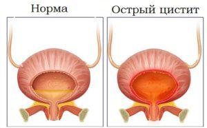 Почему появляется кровь в моче у женщин