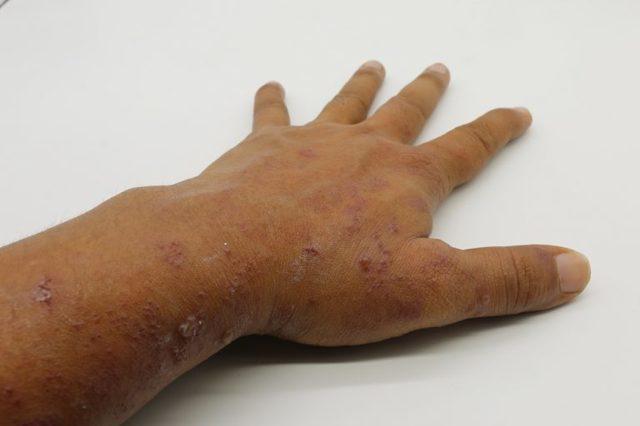 Пузырчатка у взрослых — симптомы, причины, лечение пузырчатки