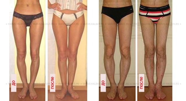 О-образные ноги, варусная деформация у ребенка и взрослого: что носить, лечение
