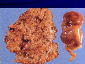 Трофобластическая болезнь, пузырный занос, хорионкарцинома у беременных
