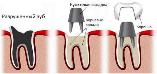 Зубные вкладки в стоматологии: плюсы и минусы, что это такое, вкладки под коронку