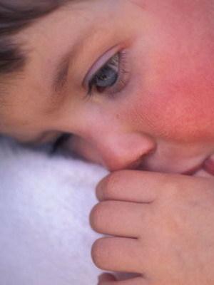 Скарлатина у детей: причины, симптомы, осложнения, лечение скарлатины и методы профилактики