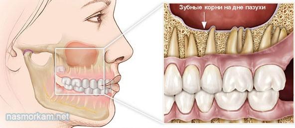 Киста челюсти, челюстной пазухи: причины, симптомы, диагностика, лечение