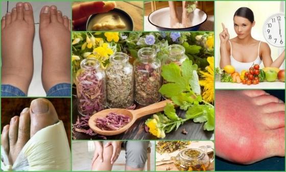 Ревматизм: симптомы и лечение, народные средства лечения ревматизма и диета при ревматизме