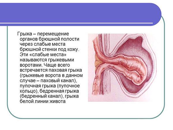 Пупочная грыжа у взрослых – симптомы, лечение, операция при пупочной грыже, последствия