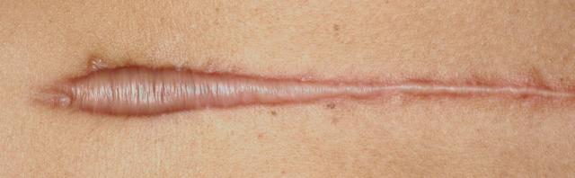 Келоидные рубцы: причины образований, методы лечения и удаления келоидных рубцов, способы профилактики