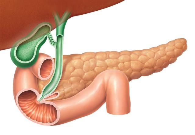 Инсулинома поджелудочной железы: симптомы, причины, диагностика и лечение инсулиномы