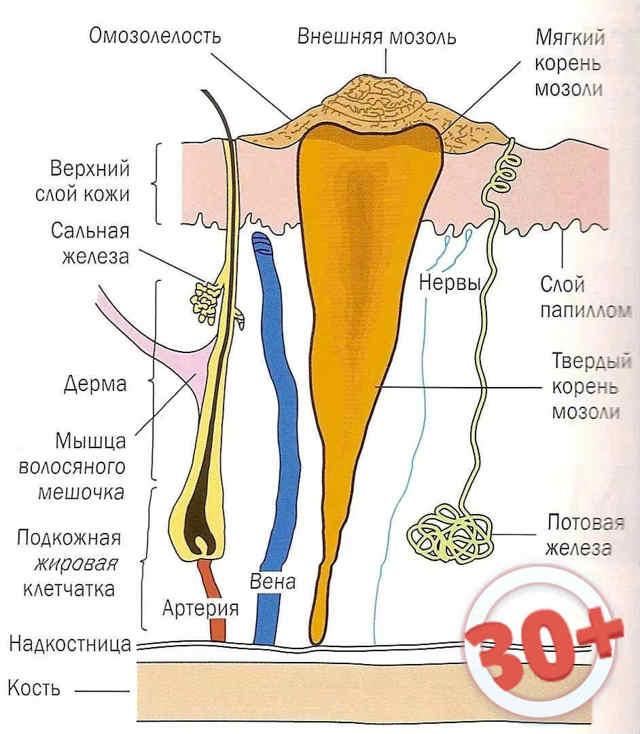 Мозоли на ногах: лечение сухих мозолей, мозолей со стержнем, мокрых мозолей, эффективные средства от мозолей