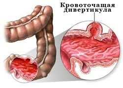 Желудочно-кишечные кровотечения: симптомы, неотложная помощь, лечение