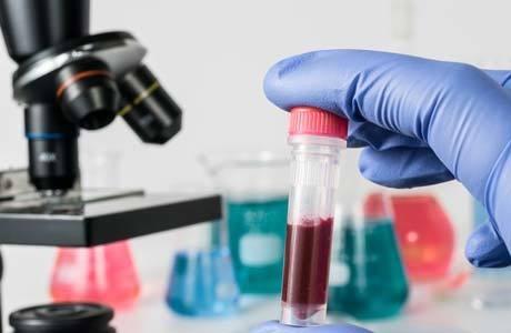 Мочевина в крови: нормы, почему бывает повышена мочевина в крови: причины повышения уровня мочевой кислоты