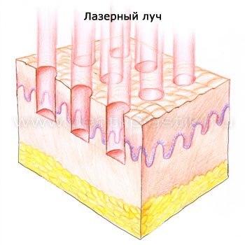 Фракционное омоложение: что это такое, фото лазерного фракционного омоложения