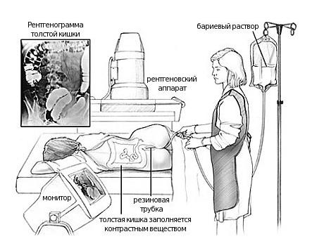 Болезнь Уиппла: что это, симптомы, диагностика и лечение у детей и взрослых