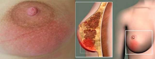 Эктазия протоков молочных желез: что это такое, симптомы и лечение