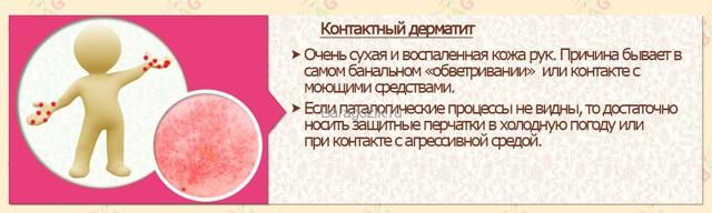 Причины шелушения кожи: что делать, если шелушится кожа на лице, на руках, на ногах, лечение шелушения кожи у детей