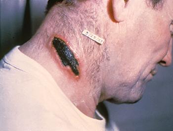 Сибирская язва: возбудитель, диагностика, лечение и профилактика сибирской язвы
