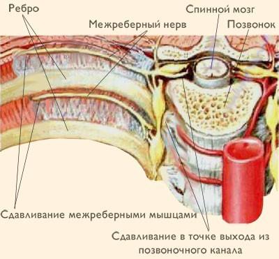 Колет в левом боку под ребром при вдохе, при беге, после еды: что это может быть