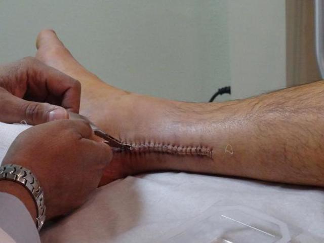 Разрыв ахиллова сухожилия: симптомы, лечение, восстановление, реабилитация после операции