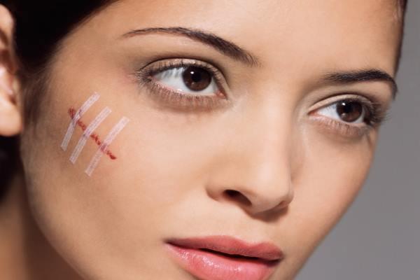 Туберкулез кожи – симптомы начальной стадии, причины, лечение взрослых и детей