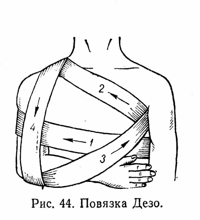 Как лечить растяжение мышц и сухожилий плечевого сустава и как долго заживают сухожилия на руке после растяжения на тренировке