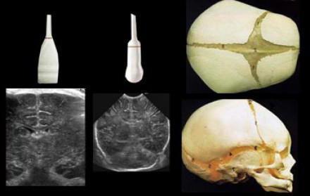 Нейросонография головного мозга новорожденных: показания, расшифровка