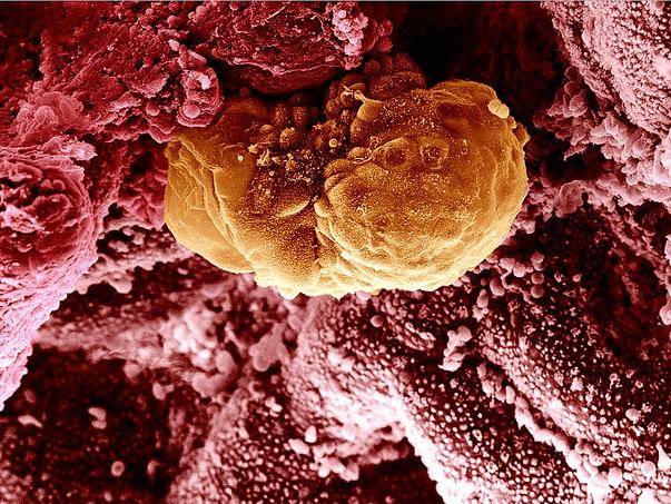 Имплантация эмбриона после ЭКО: на какой день, признаки, ощущения по дням
