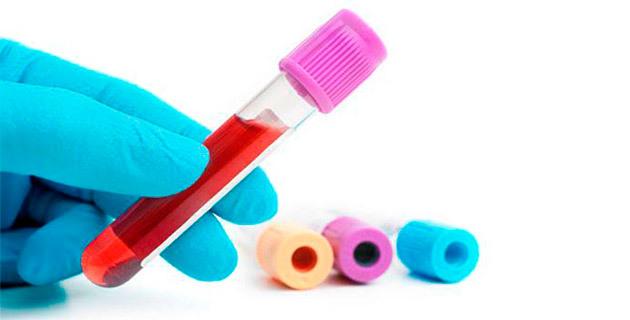 Как расшифровать анализы крови на онкомаркеры?