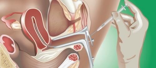 ИКСИ-оплодотворение: что это такое, отличие ЭКО и ИКСИ, беременность при ИКСИ