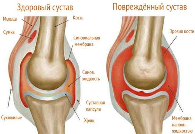 Ревматоидный артрит, подагрический артрит суставов, инфекционный артрит – симптомы и лечение