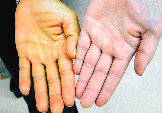Анаболические стероиды: последствия приема анаболиков, вред стероидов
