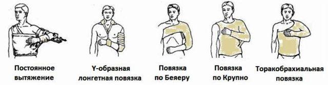 Открытый перелом плечевой кости со смещением и без: первая помощь, признаки
