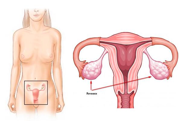 Рак яичников: первые признаки и симптомы, прогноз, стадии, стадии, рак яичников на УЗИ