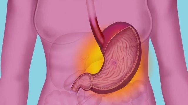 Билиарный рефлюкс-гастрит: что это такое, симптомы и препараты для лечения