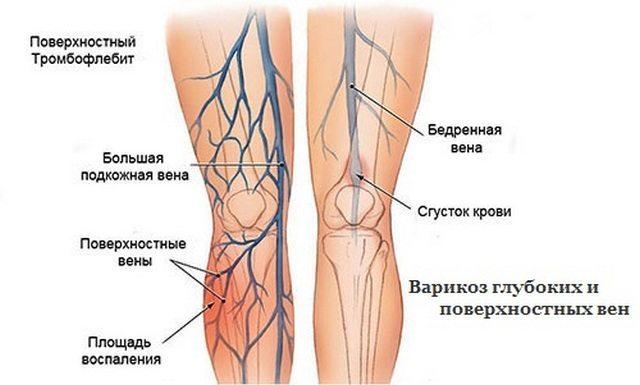 Ноет нога ниже колена: причины, что делать, к какому врачу обратиться