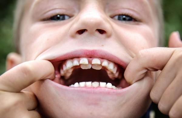 Не выпадает молочный зуб, постоянный зуб растет за молочным, сроки смены прикуса