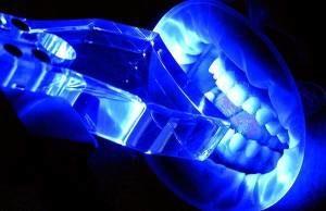Фотоотбеливание зубов: что это, показания и противопоказания, плюсы и минусы