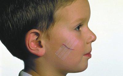 Рана у ребенка: чем обработать глубокую рану, чем промывать, что делать, первая помощь