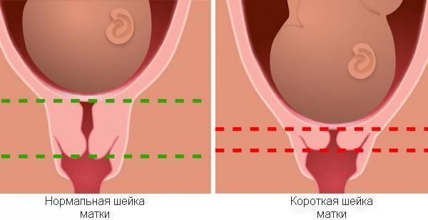 Истмико-цервикальная недостаточность во время беременности: что это, симптомы