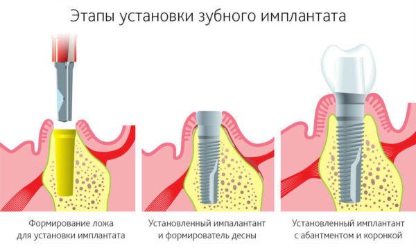 Имплантация зубов: виды операций, типы имплантов, показания и противопоказания