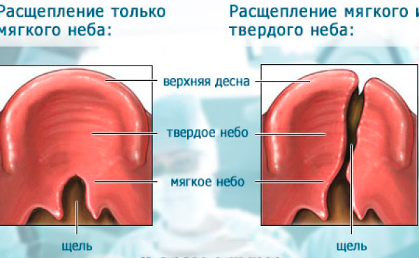 Заячья губа: причины возникновения, что делать, заячья губа до и после операции