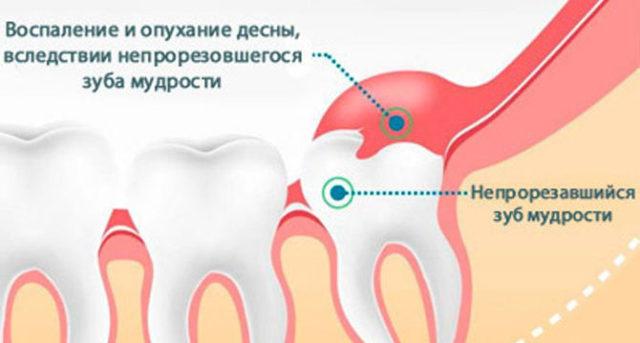 Опухла щека, но зуб не болит: как снять опухоль, что это может быть, что делать