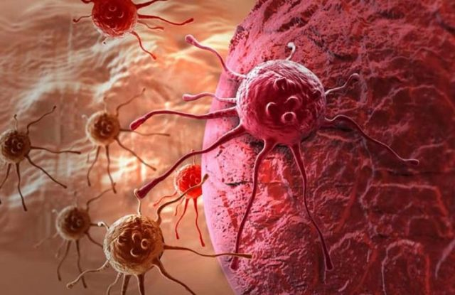 Гормонозависимый рак молочной железы: прогноз выживания, химиотерапия, операция