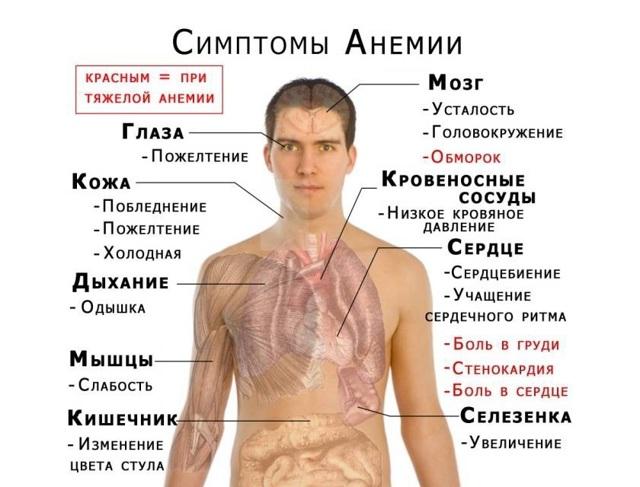 Препараты железа при анемии: какие лекарства при анемии наиболее эффективны