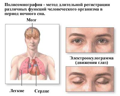 Синдром сонных апноэ: что это такое, причины, симптомы, лечение